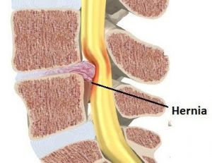 dolor-espalda-hernia-discal