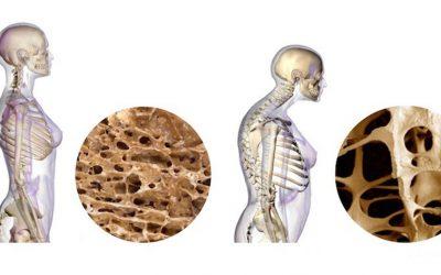 Entrenamiento Personal y ejercicios para controlar la osteoporosis
