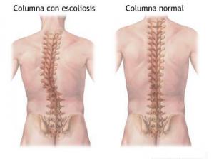 columna con y sin escoliosis