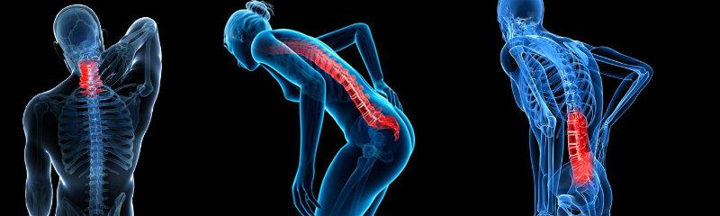 Reducir dolores de espalda
